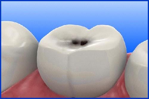 L8020 – Khắc tinh của vi khuẩn sâu răng